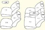 NCP100前期(H17/10〜H19/12)用 セット内容イメージ図